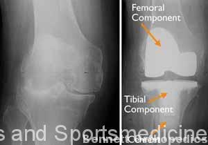 (Left) An x-ray of a severely arthritic knee. (Right) The x-ray appearance of a total knee replacement. Note that the plastic spacer between the bones does not show up in an x-ray.