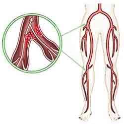 Blood clots may develop in leg veins.