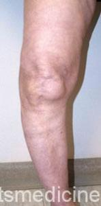 A knee that has become bowed as a result of severe arthritis.