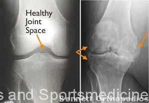 (Left) In this x-ray of a normal knee, the space between the bones indicates healthy cartilage (arrow). (Right) This x-ray of an arthritic knee shows severe loss of joint space and bone spurs (arrows).