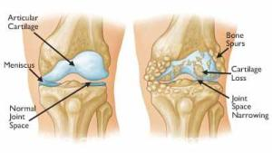 Osteoarthritis often results in bone rubbing on bone. Bone spurs are a common feature of this form of arthritis.