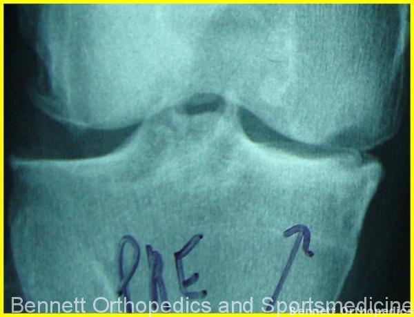 This xray shows a knee with medial compartment arthritis.