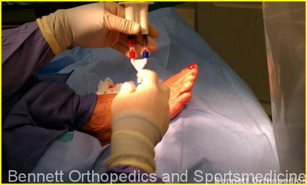 prp-ankle-foot